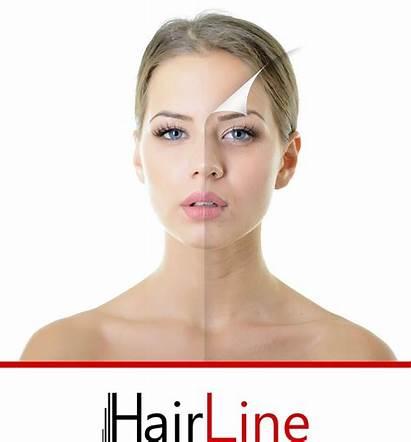 Hairline Laserbehandlungen Haarentfernung Friseure