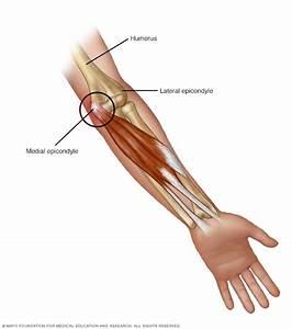 Golfer U0026 39 S Elbow - Symptoms And Causes