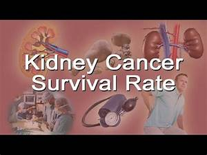 Kidney Cancer Survival Rate - YouTube