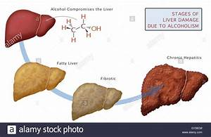 Stages Of Liver Damage Due To Alcoholism  First Alcohol