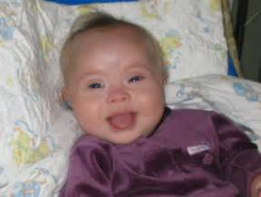 A Special Joy 22: Babies With Down Syndrome Parenting