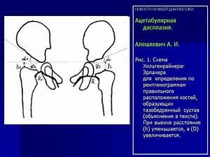 Алмаг препарат от артроза
