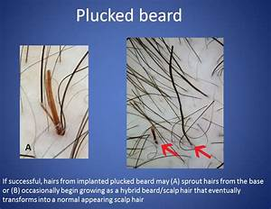 Dr. Cooley's 2012 Presentation on Hair Duplication and ...