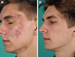 Adalimumab for the Treatment of Refractory Acne Conglobata ...