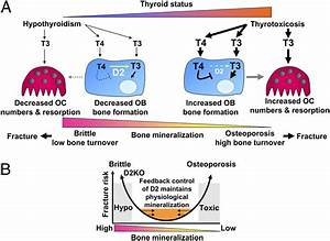 Optimal Bone Strength And Mineralization Requires The Type 2 Iodothyronine Deiodinase In