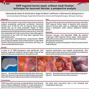TAPP Inguinal Hernia Repair Without Mesh Fixation ...