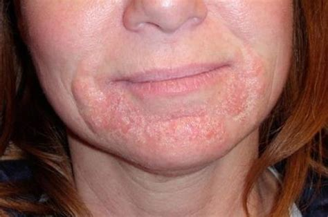 What Can Cause Hives On The Face, Lips And Neck?