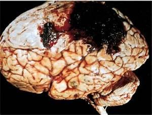 Neuro at Florida Atlantic University College Of Medicine ...