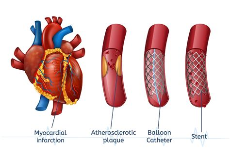 Has Your Cardiologist Suggested You Need To Get A Stent