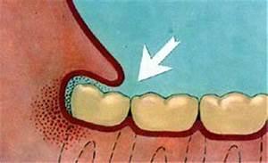 Douleurs Dents De Sagesse : tout ce qu il faut savoir sur les dents de sagesse ~ Maxctalentgroup.com Avis de Voitures