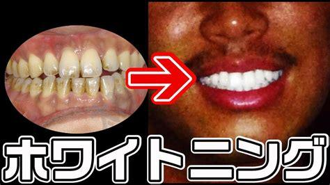 歯 白く する