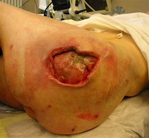 grade 4 pressure sore pictures to pin on pinterest pinsdaddy With black bed sores