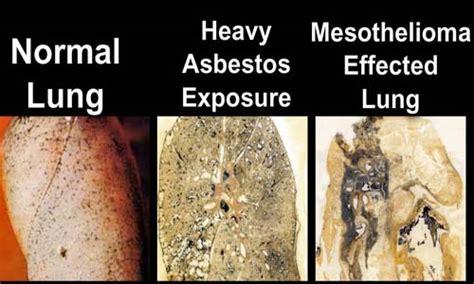 asbestos dangerous  health pitedacom