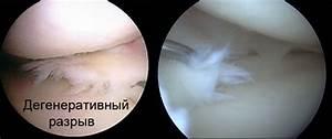 Почему болит коленный сустав после пункции