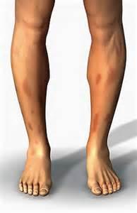 symptome müdigkeit schwäche übelkeit sarkoidose symptome apotheken umschau