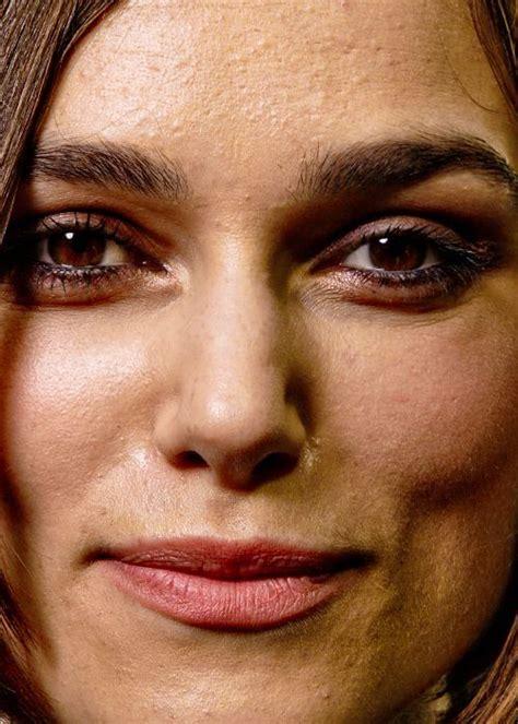 celebrities  battle acne problems celebrity faces keira knightley photoshop