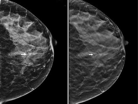 improved performance   mammography