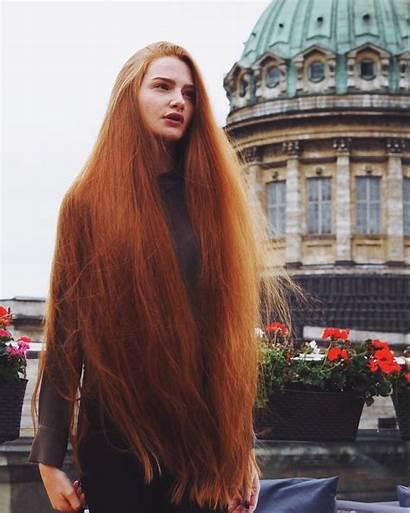 Russian Woman Alopecia