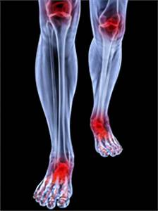 Exercise is good, not bad, for arthritis - Harvard Health ...