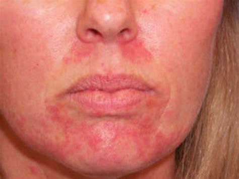 cure  perioral dermatitis hubpages