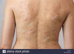 Young Girl With Acne  With Red Spots On The Back Stock