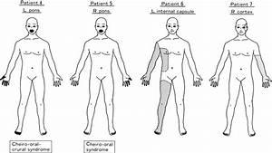 Pure Sensory Stroke Caused By A Cerebral Hemorrhage