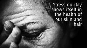 Stop The Stress Or Never Stop The Hair Loss