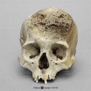 Human Female Skull  Meningioma