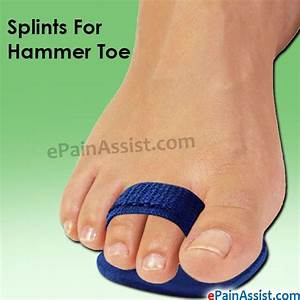 This article explains how Hammer Toe can be treated ...