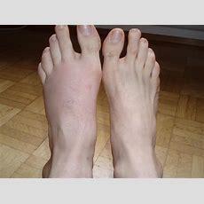 Mosquito Foot  English Forum Switzerland