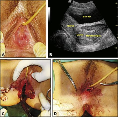 hymen sparing surgery  imperforate hymen case reports