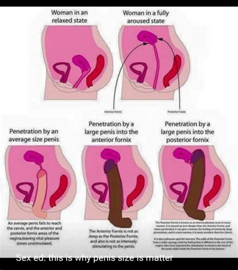 This Is Why Penis Size Is Matter Badwomensanatomy