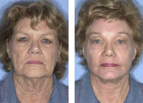 Chemical Peel Fort Lauderdale   Before And After   Miami