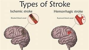 Stroke  Types  Symptoms  And Long