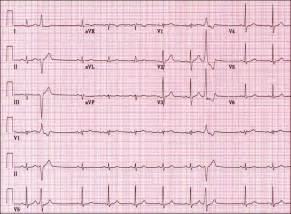 EKG Heart Test Results