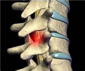Наклофен лечение остеохондроза