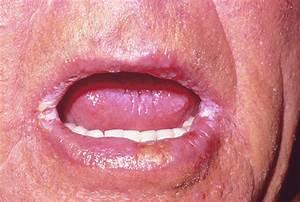 Angular stomatitis candidiasis, lamisil pills candida