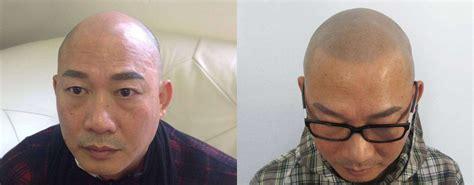 scalp micropigmentation before after 3 ⋆ Balding Beards