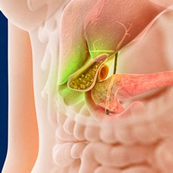 gallbladder pain relief signs symptoms treatment location