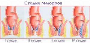 Геморрой 2-3 степени при беременности
