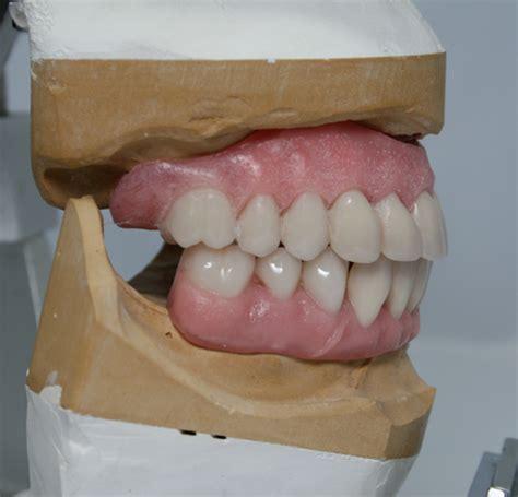 premium full dentures removable posthetics sunrise