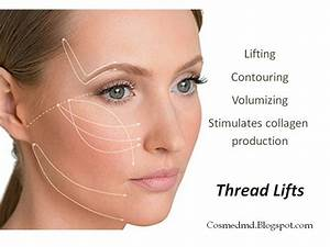 contour thread lift