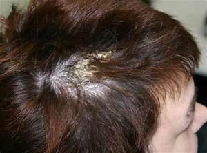 Witte korstjes op hoofdhuid