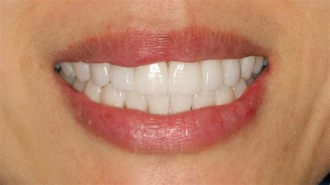 dr randy furshman achieving   star smile  veneers