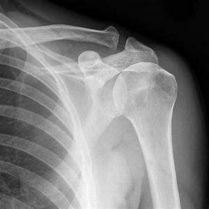 Normal shoulder x-rays | Image | Radiopaedia.org
