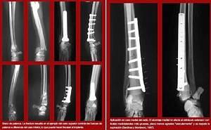 Complicaciones De Fracturas Reparadas Con Placas Y Tornillos