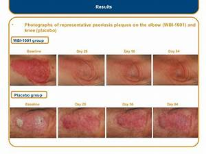 Psoriasis, pictures and More