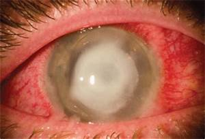 Bacterial vs. Viral: Name That Infection!  Ulcer Corneal ulcers and infections