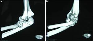 Computed Tomography Scan Of The Left Elbow Demonstrating