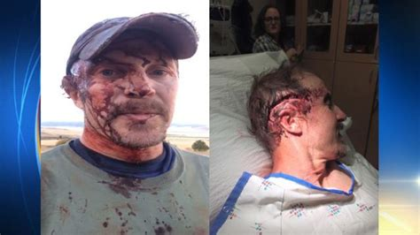 Widows Porch by Man Recovering After Being Attacked Twice By Grizzly Bear